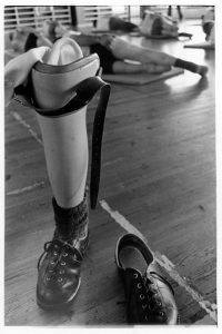 Kaskisaari-proteesi
